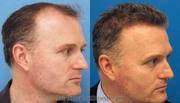 cost of hair transplant | hair transplant near jammu & kashmir